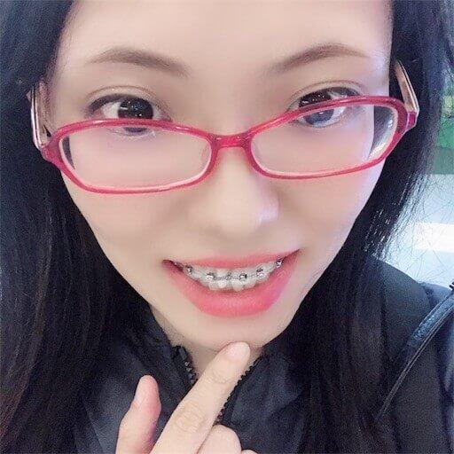 歯列矯正をつけた初日