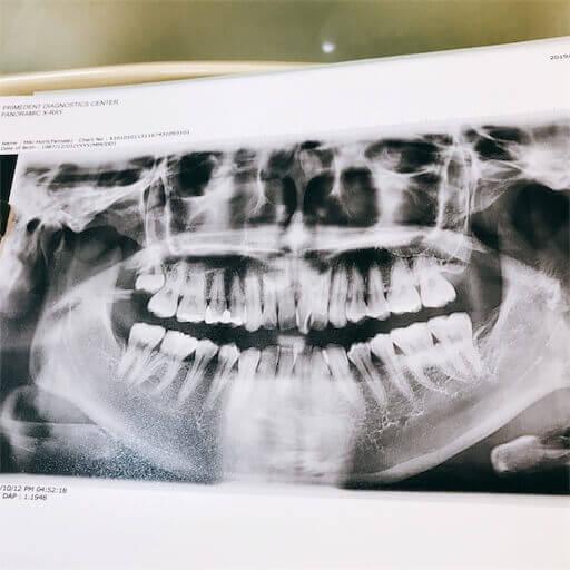 歯列矯正のレントゲン写真