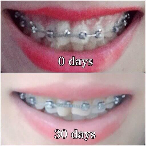 歯列矯正1か月目