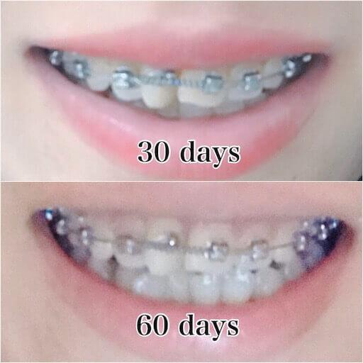 歯列矯正2か月後