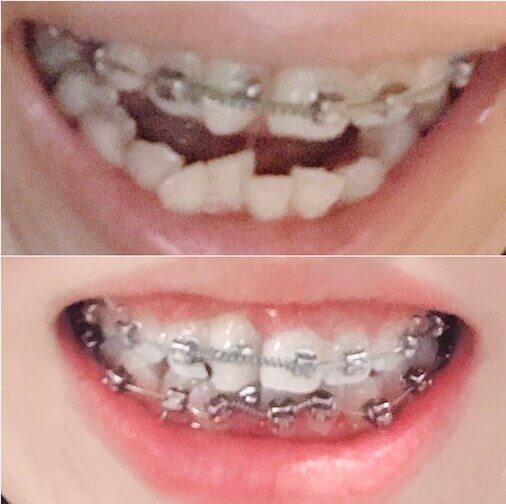 歯列矯正 2か月後